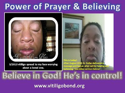 http://acceptance-livingwithvitiligo.blogspot.com