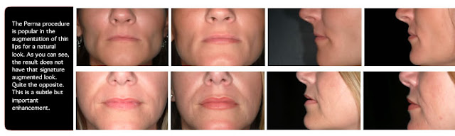 http://kashtanpharma.co.uk/chemical-peels/glycolic-acid-50-chemical-peel-detail