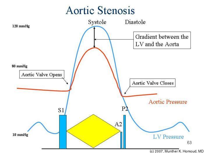 Aortic Stenosis Pathalamus