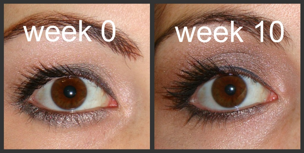 Prettied Up My Dramatic Results After Using Latisse For 10 Weeks