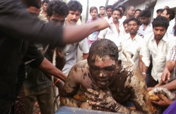 A victim of a blast in a gas pipeline belonging to GAIL in Andhra Pradesh's East Godavari district on June 27, 2014.