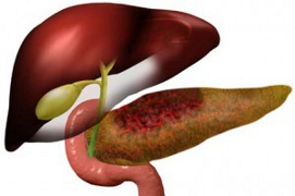 Informatii medicale despre pancreatita acuta