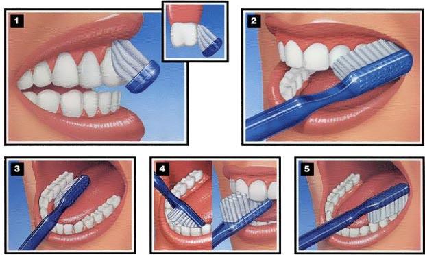 Beginilah Tips & Cara Menyikat Gigi yang Benar!