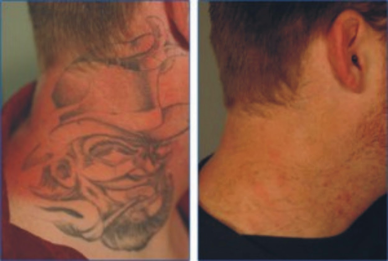 Tattoo removal creams tips and tricks for Erase a tattoo
