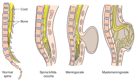 spina bifida meningomyelocele, Skeleton