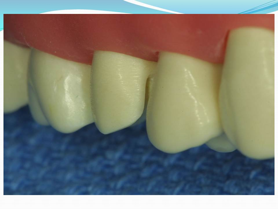 Introduction to Fixed Prosthodontics-3.bp.blogspot.com