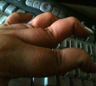 Ana Tirolese's hand