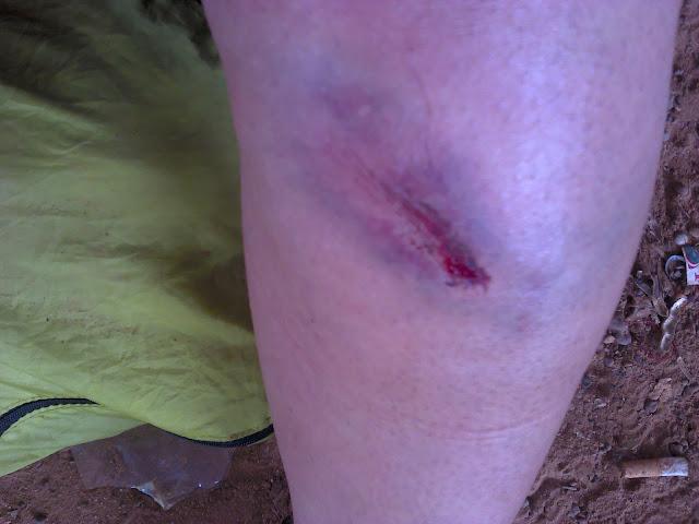 Mi pierna herida después de la caída