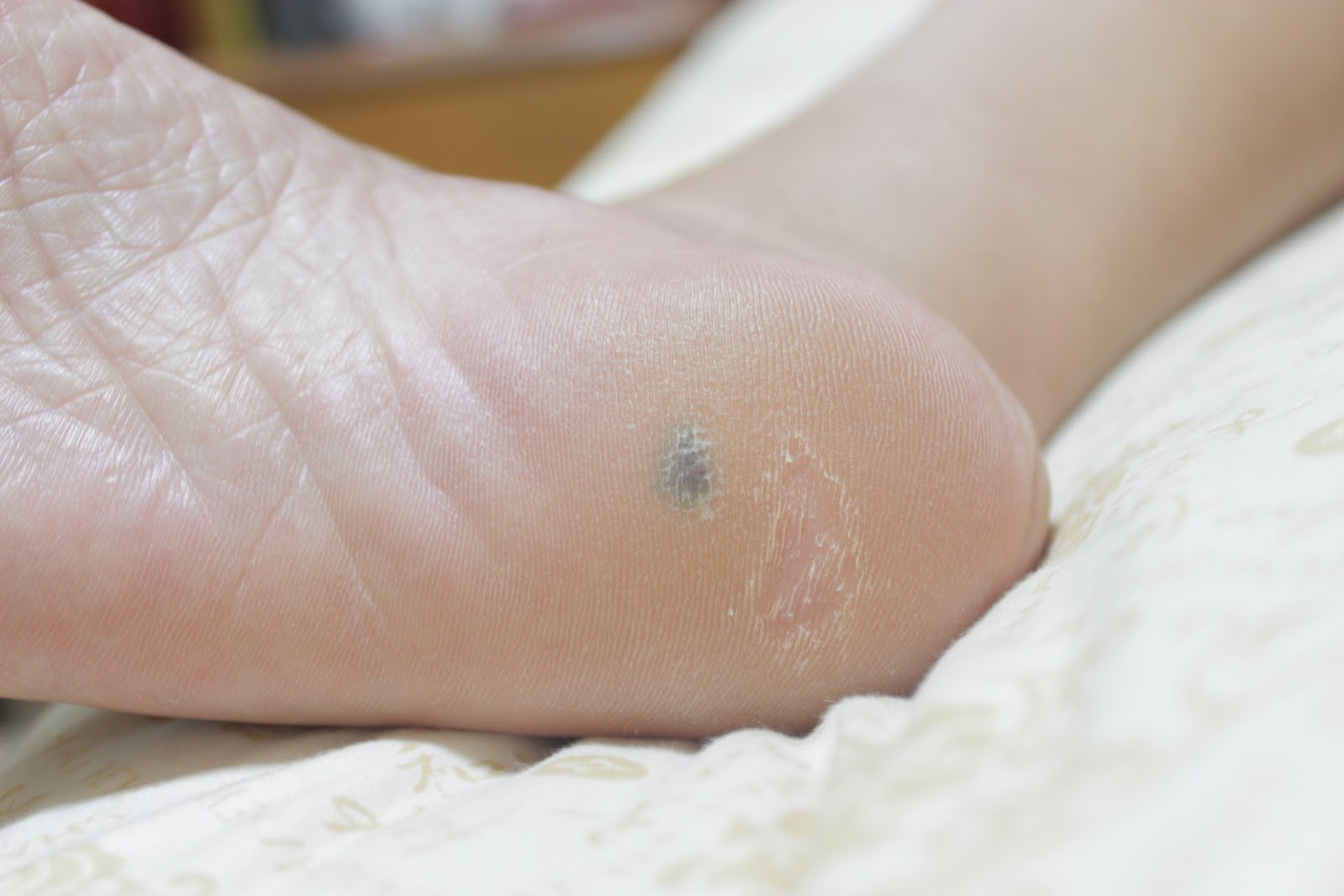 how to heal cut sole of foot