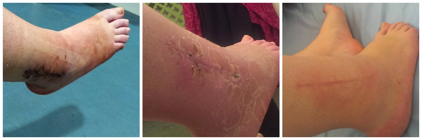 The healing process of the scar on the right side of my ankle