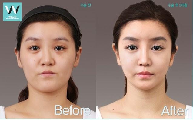 Foto sebelum dan sesudah operasi hidung bengkok di operasi plastik Wonjin
