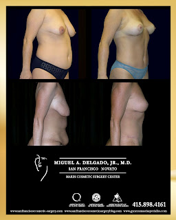 Mommy makeover before and after-Breast lift,tummy tuck, lipo