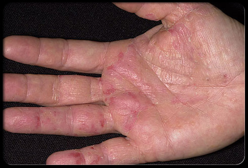 Skin manifestations of psoriasis tend to occur before arthritic manifestations in about 75  of cases 2