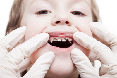 Criticism Oral thrush in toddlers does