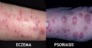 permanent psoriasis relief how to ensure that you do not