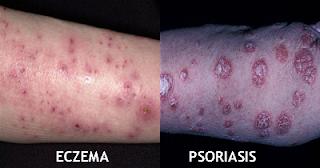 La psoriasis o la eccema del cuero cabelludo