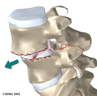 back brace and spondylothesis What is spondylolisthesisspondylolisthesis is a symptoms of spondylolisthesis may include: back or you may need to wear a cast or back brace for a.