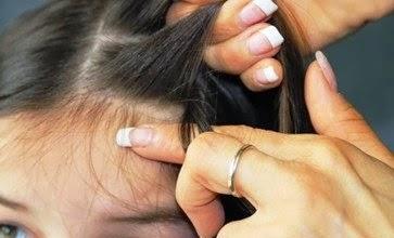 Penyebab Kutu Rambut Cara Mengatasinya