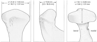 Mandibular Condyle : Dimensions , Shapes , Function and Structural adaptation of the condyle