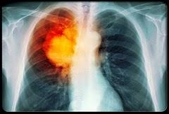 Obat kanker paru herbal resep dokter