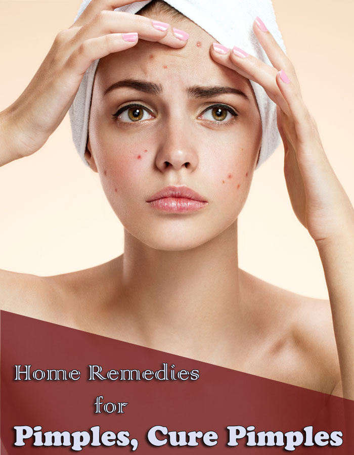 Home Remedies for Pimples, Cure Pimples