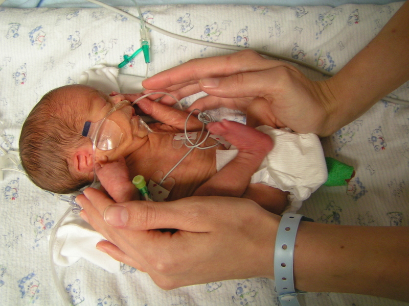 premature birth In the uk, around 60,000 babies are born prematurely each year globally, more than 1 in 10 pregnancies end in preterm birth.
