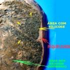Cancer de Pulmão, outros esclarecimentos