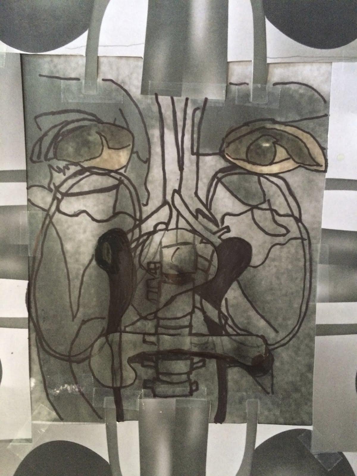 Stewart w Kidneys Detail