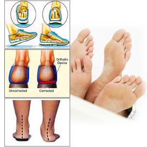 Aparatos ortopédicos