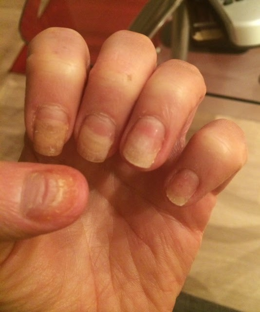 The Lighter Bits Of Nails Are Where They No Longer Attached To My Fingers Thumb Nail On Left Hand Has Already Fallen Off