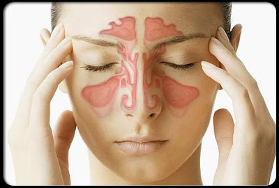 Remedies For a Sinus Infection