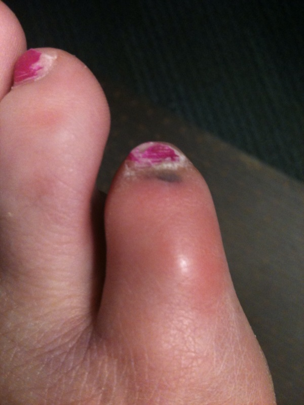turbeillun: It\'s Been a Bad Year for Toes (Warning: Gross Pics)