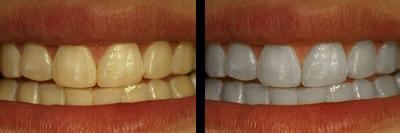 Tips Cara Memutihkan Gigi Kuning Secara Alami Dengan Cepat Blog