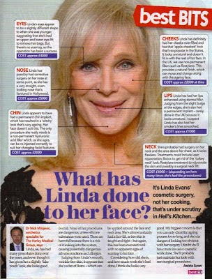 Linda Evans Plastic Surgery Before And After Nose Job