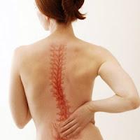 Cara Mengatasi Sakit Tulang Ekor