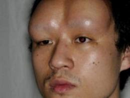 man with double bageled forehead