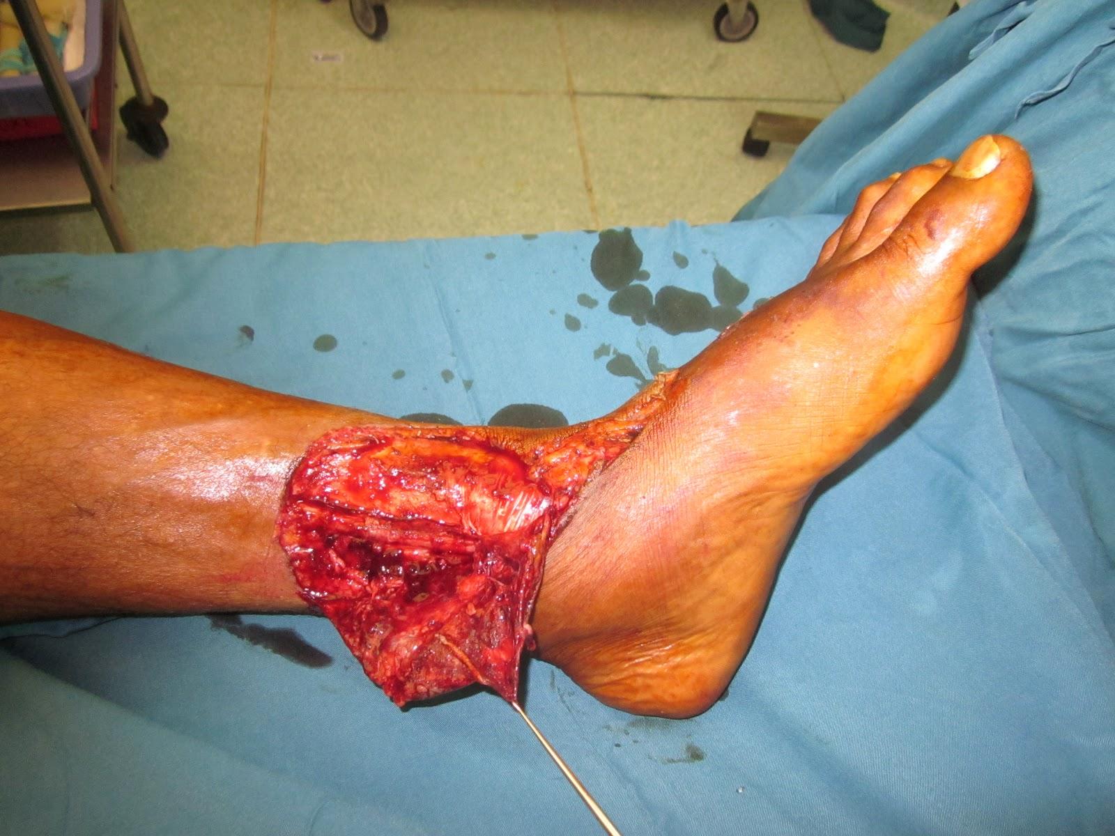 SKIN AVULSION INJURY LOWER THIRD LEG AND DORSUM ANKLE