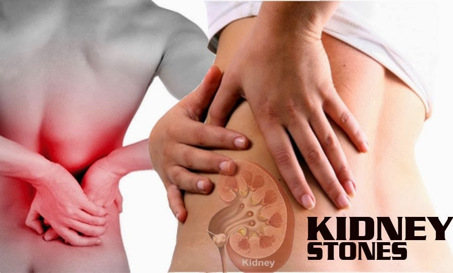 herbal cure for kidney