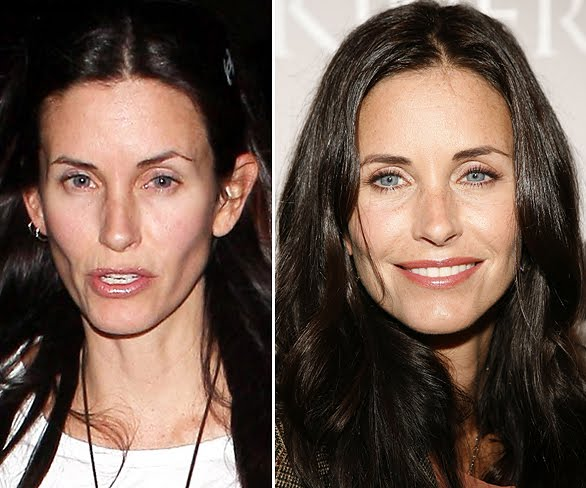 courteney cox plastic surgery before after pictures in 2012