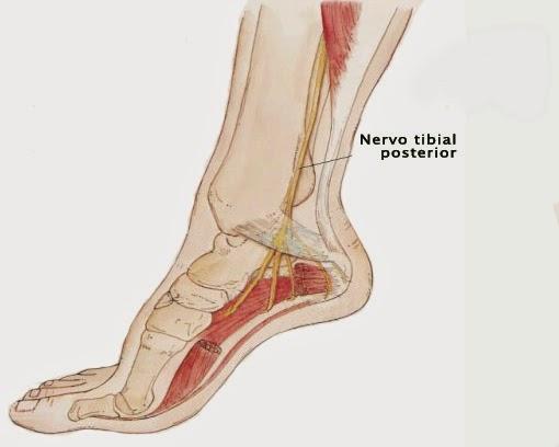 FASCITIS PLANTAR | Centro de Fisioterapia Myos-Terapia Manual & Pilates