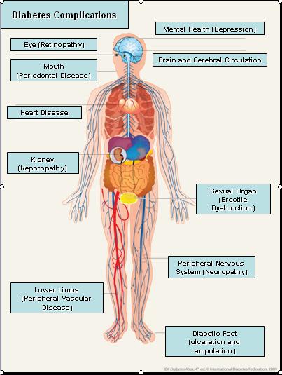 Complications of diabetes ~ Diabetes