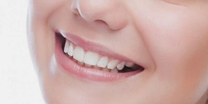 Menjaga Kesehatan Mulut dari Gangguan Sariawan