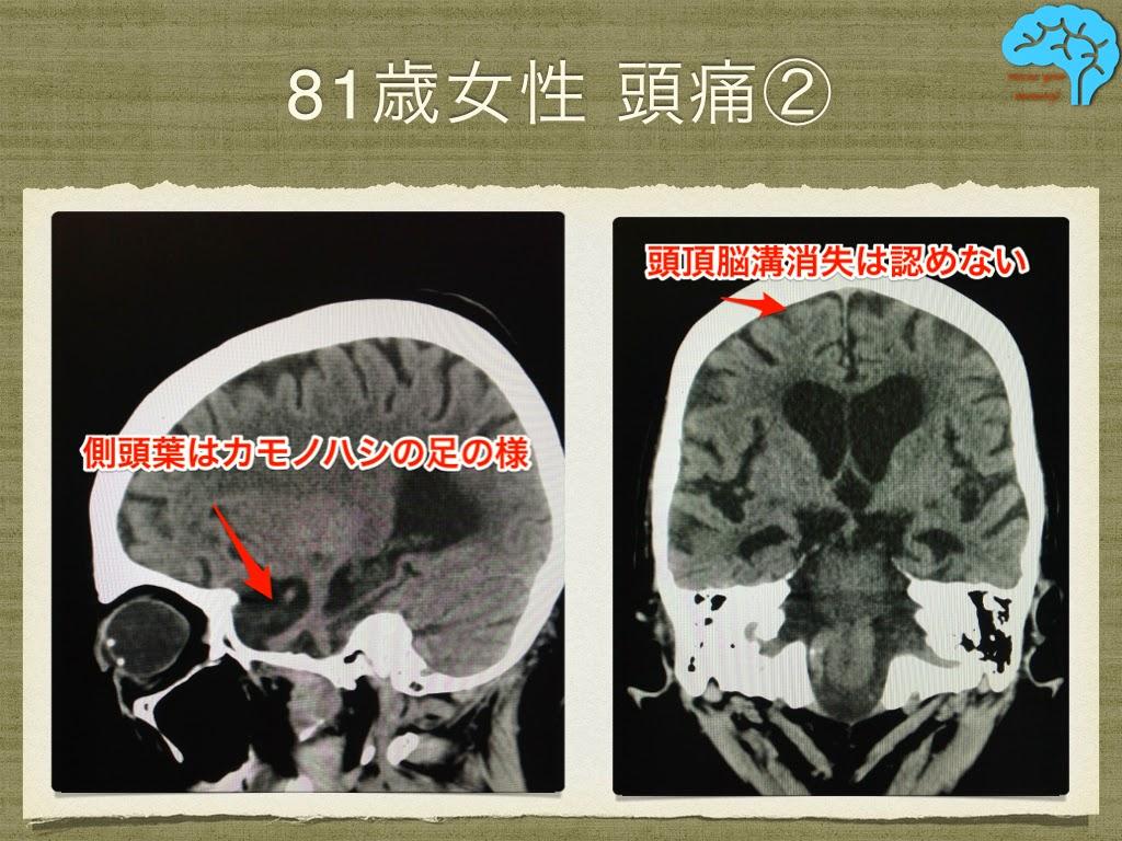 側頭極の萎縮あり。頭頂脳溝消失は認めない。