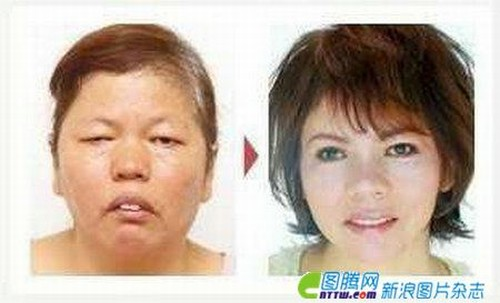 After Plastic Surgery
