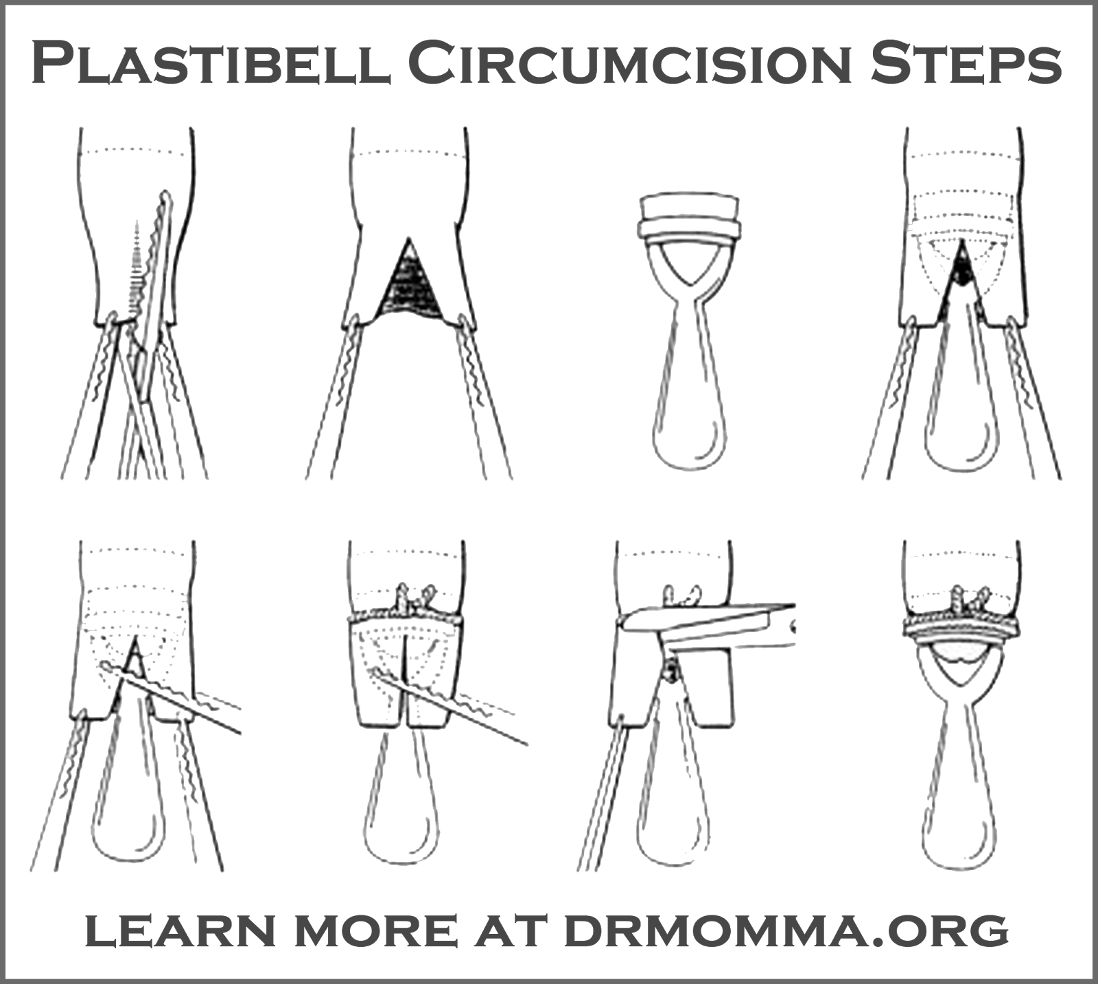 peaceful parenting: Plastibell Infant Circumcision