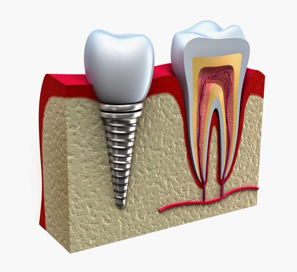 http://www.dentalimplantsclinicindia.com/