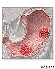 Nursing Assessment for Peptic Ulcer