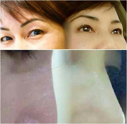 Foto Sebelum Dan Sesudah : Perubahan Penampilan Wanita Indonesia Pasca Jalani Operasi Plastik di Korea