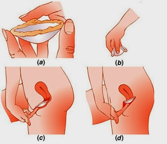 Come curare emorroidi nel modo chirurgico