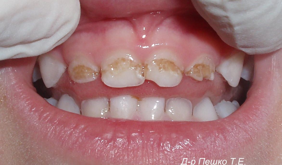 Как убрать зубы при сосании члена